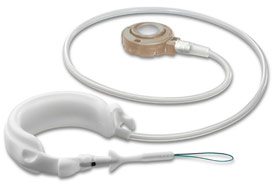 REALIZE Adjustable Gastric Band-C