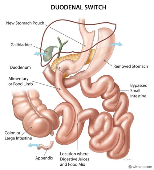 Duodenal Switch Weight Loss Surgery